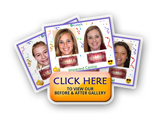 great results from orthodontic braces